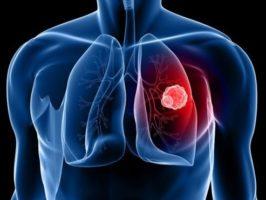 Il cancro del polmone