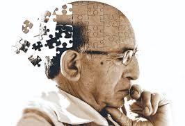 morbo di alzheimer :farmaco sperimentale