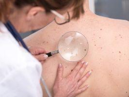 melanoma e cellule adipose