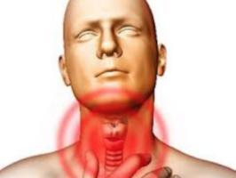tonsille e cancro
